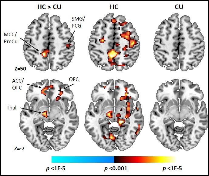 Ранната употреба на канабис води до драстични промени в когнитивните процеси на мозъка