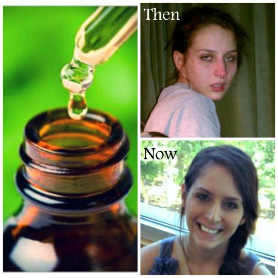 Историята на едно момиче излекувала себе си от лаймска болест с олио от коноп